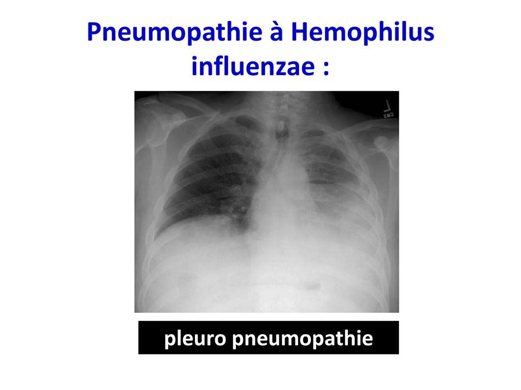 Pneumopathie bactériennes - ppt télécharger