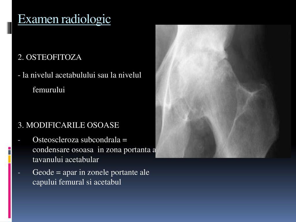 scleroza subcondrală a acetabulului tratamentului șoldului