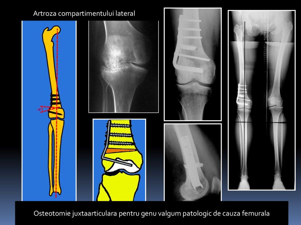 patologia congenitală a articulațiilor la genunchi de ce articulațiile rănesc mâinile