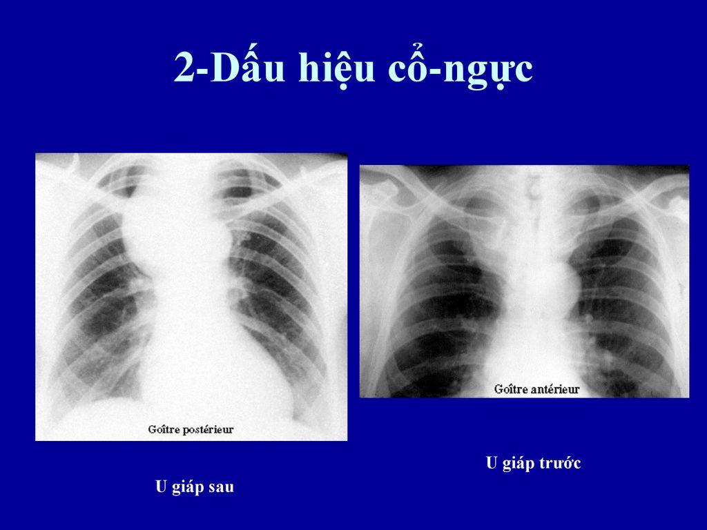 Những vấn đề chính yếu khi đọc Xquang ngực thẳng - ppt