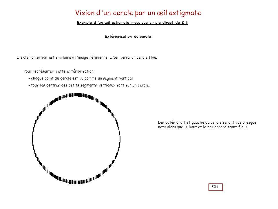 Astigmate Definition Simple Les Dfauts Visuels Le Guide De
