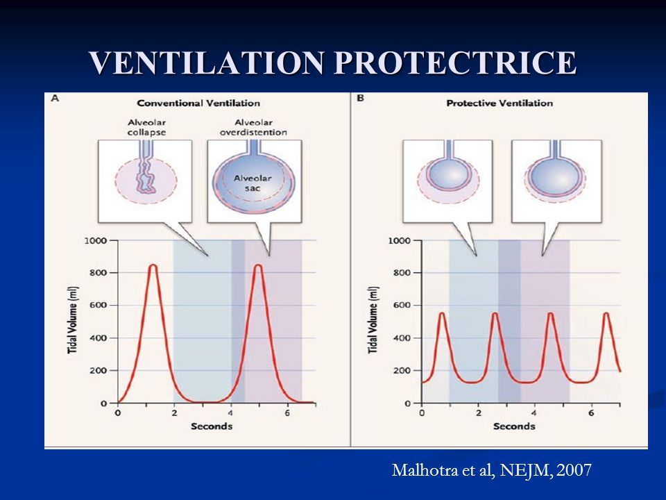 VENTILATION PROTECTRICE