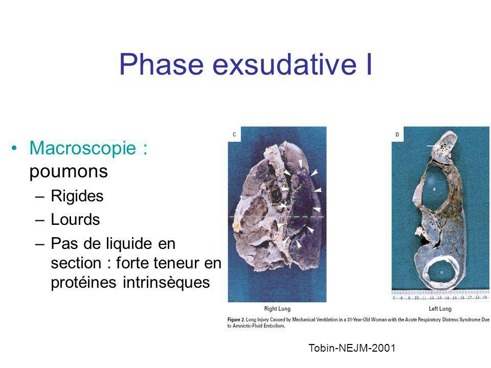 Phase exsudative I Macroscopie : poumons Rigides Lourds