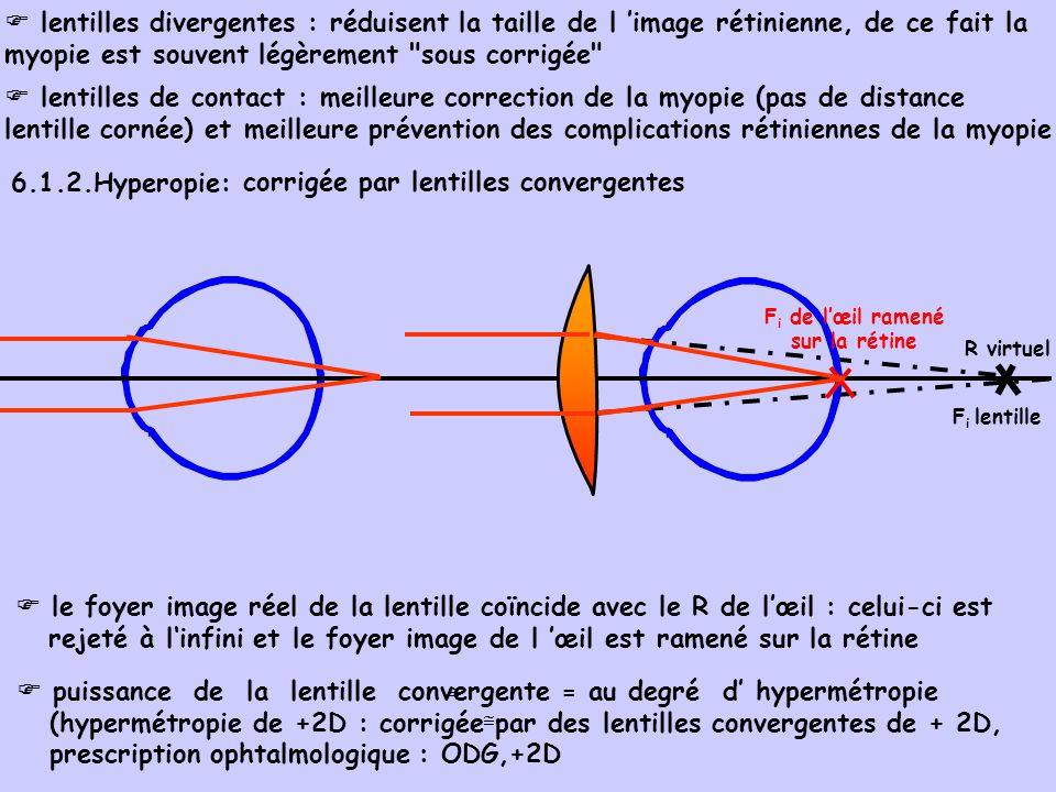 c32b4389ce332e Les amétropies sphériques   - ppt video online télécharger
