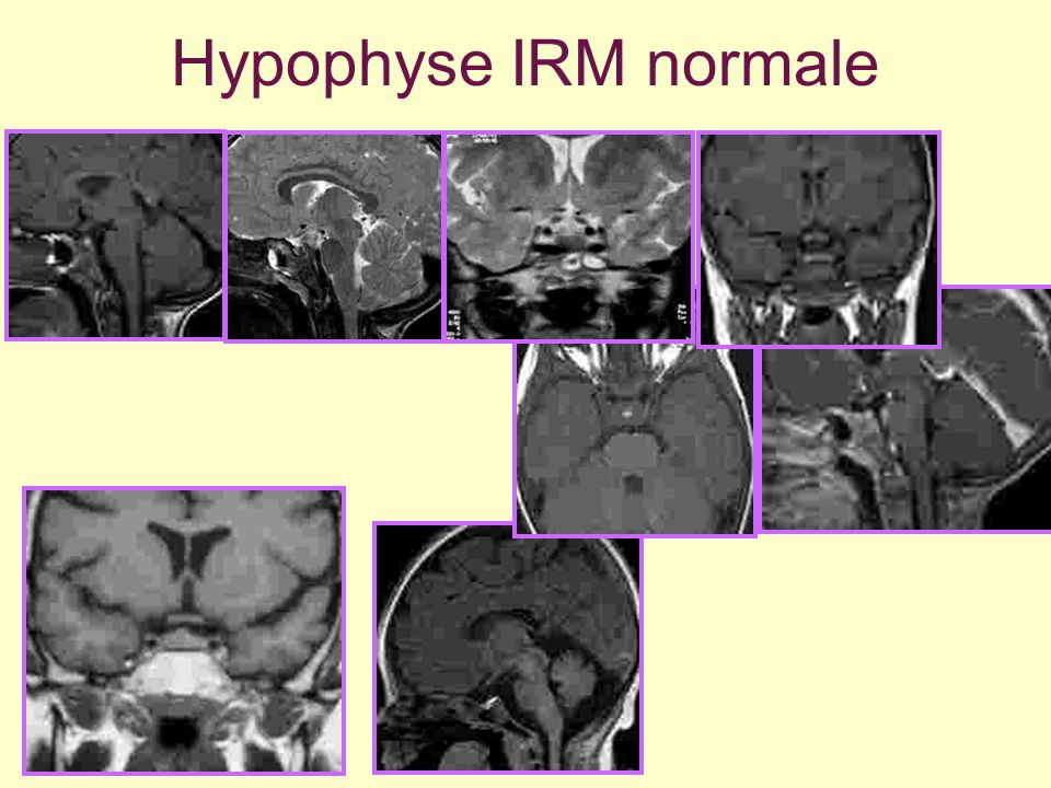 Hypophyse IRM normale