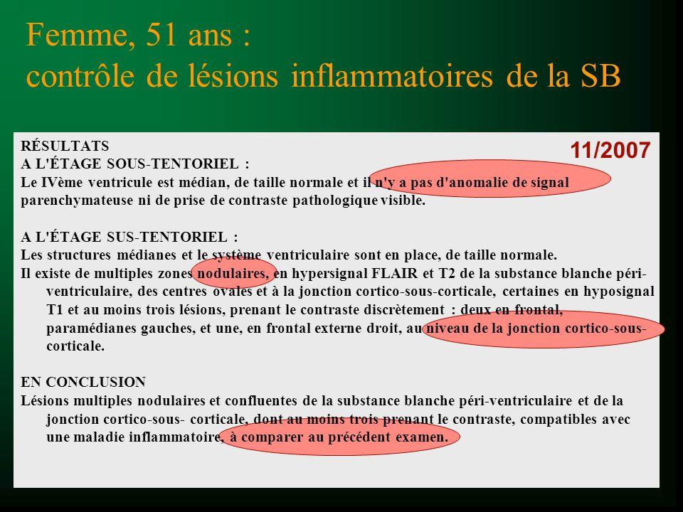 Imagerie De La Sclerose En Plaques Ppt Video Online Telecharger