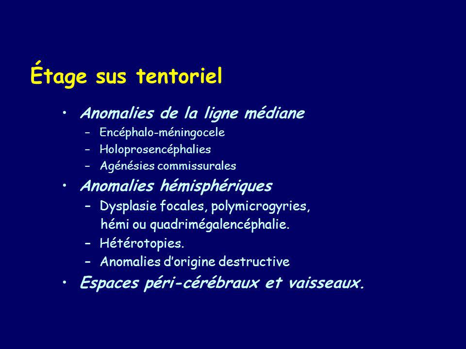 Malformations Cerebrales Ppt Video Online Telecharger