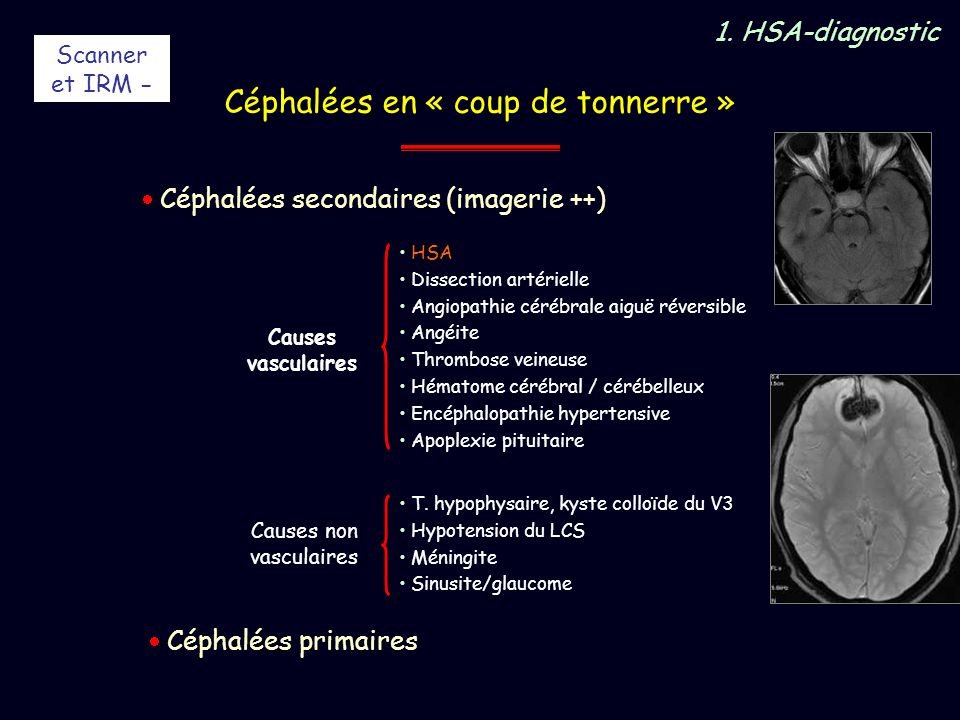 Causes non vasculaires