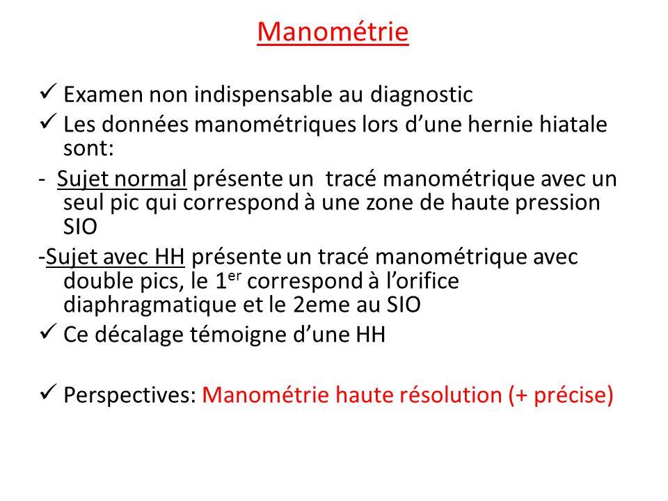 Hernies hiatales, Hernies diaphragmatiques Dr.Saadi Dr.Cheraitia ...
