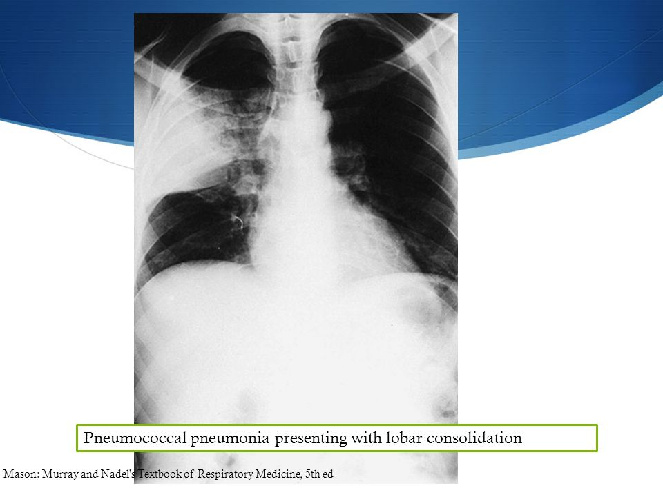 Pneumococcal pneumonia presenting with lobar consolidation