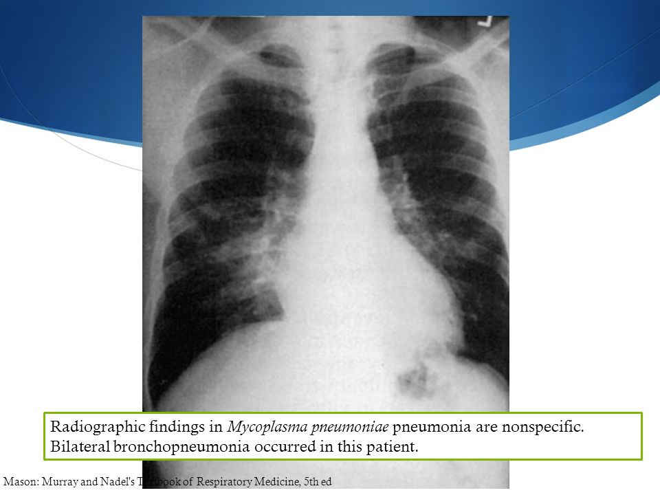 Radiographic findings in Mycoplasma pneumoniae pneumonia are nonspecific. Bilateral bronchopneumonia occurred in this patient.