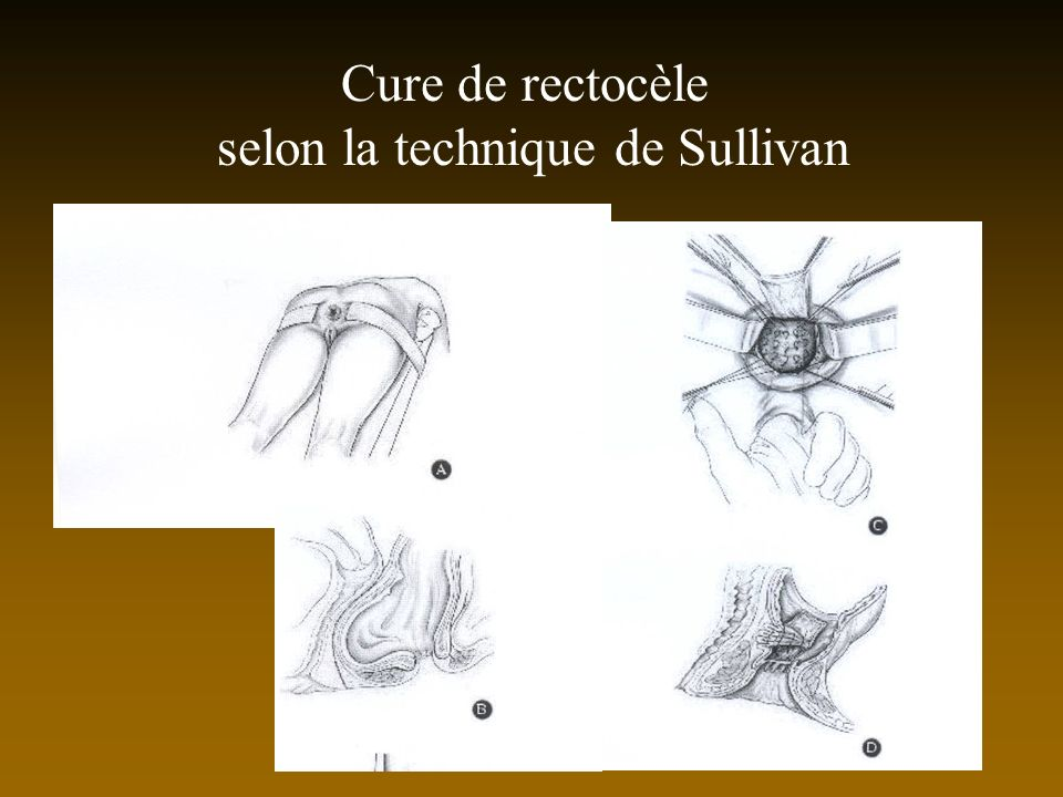 selon la technique de Sullivan