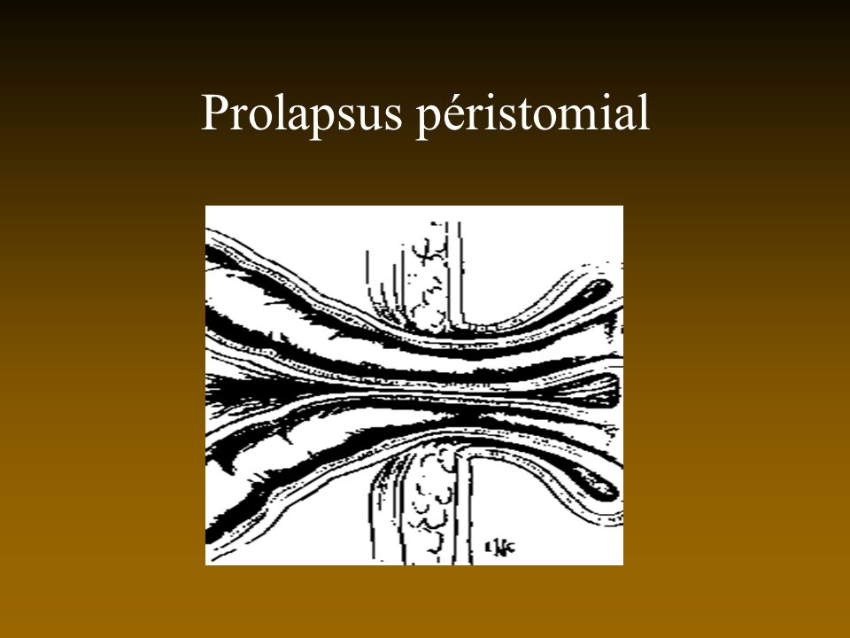 Prolapsus péristomial