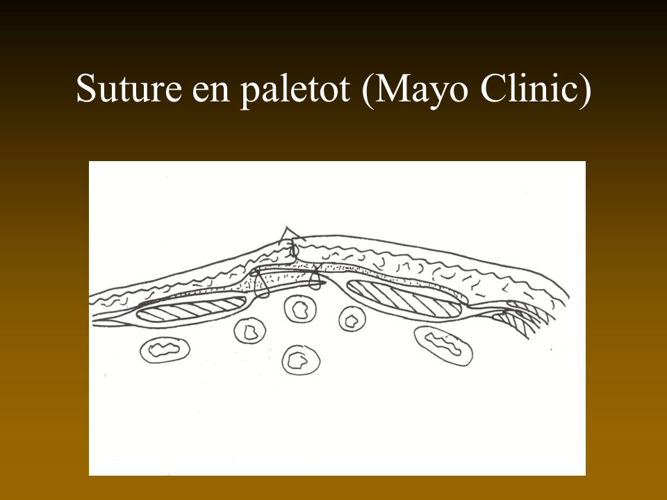 Suture en paletot (Mayo Clinic)