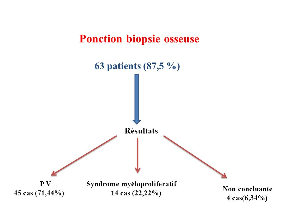Ponction biopsie osseuse
