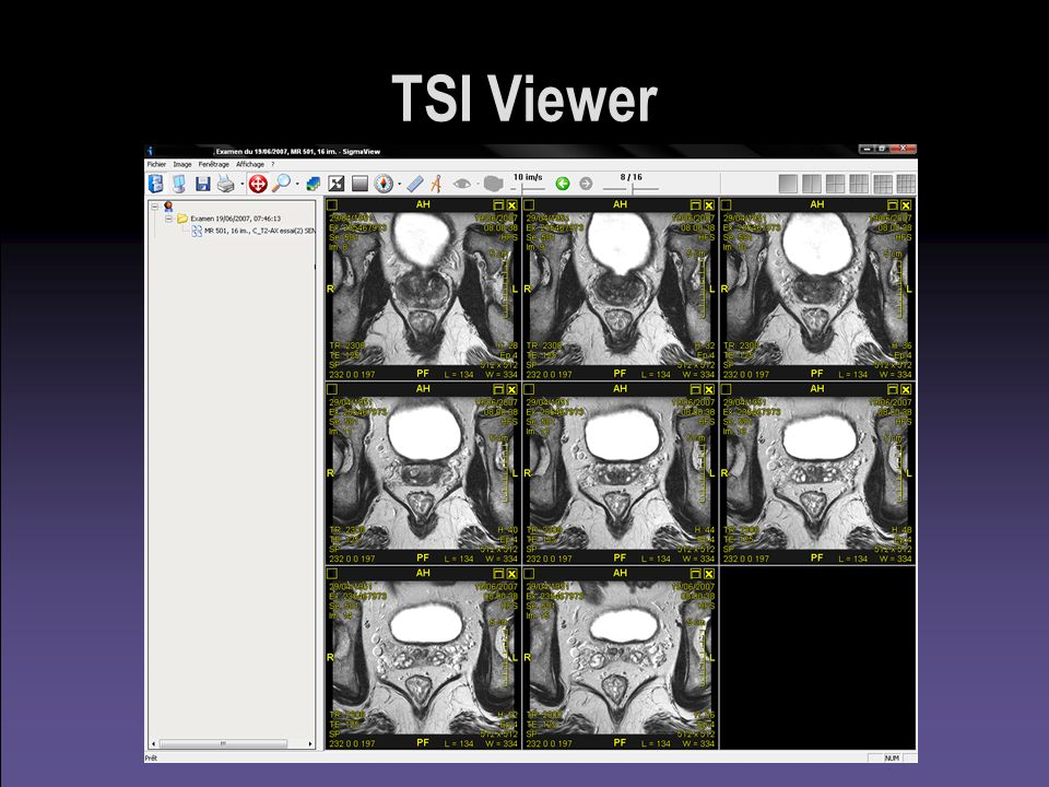 TSI Viewer