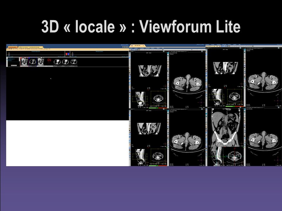 3D « locale » : Viewforum Lite