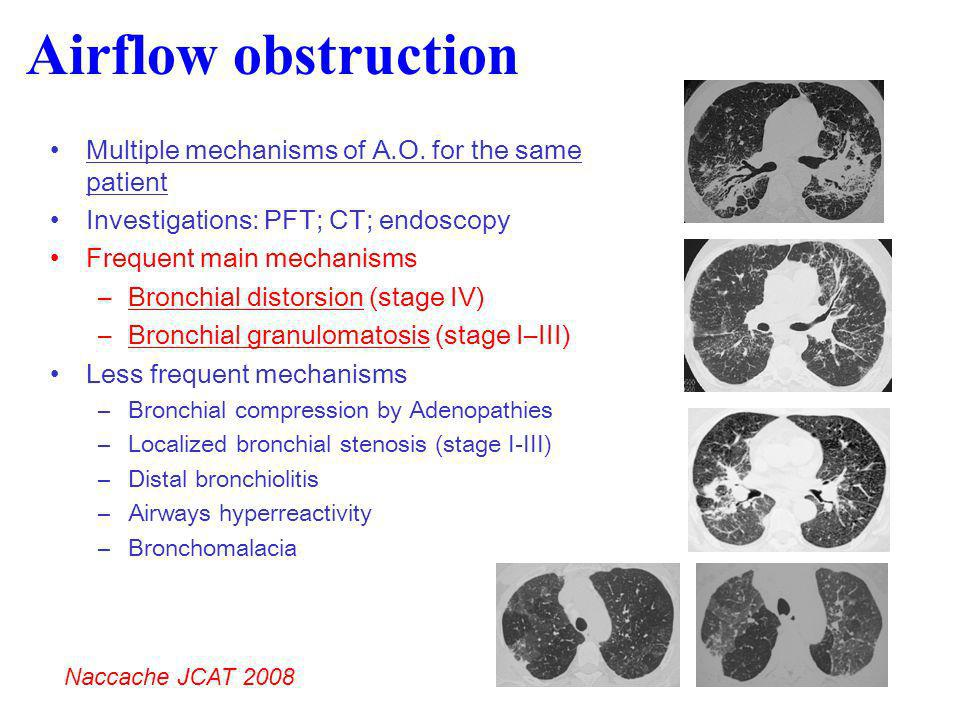 Airflow obstruction Multiple mechanisms of A.O. for the same patient