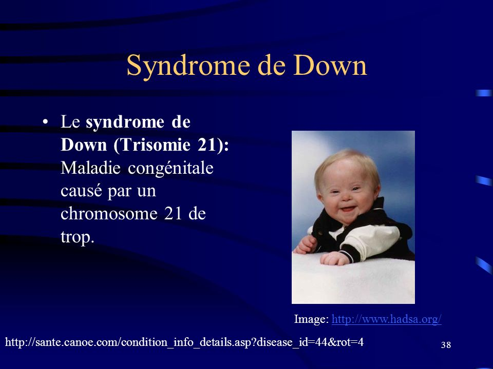 Syndrome de Down Le syndrome de Down (Trisomie 21): Maladie congénitale causé par un chromosome 21 de trop.