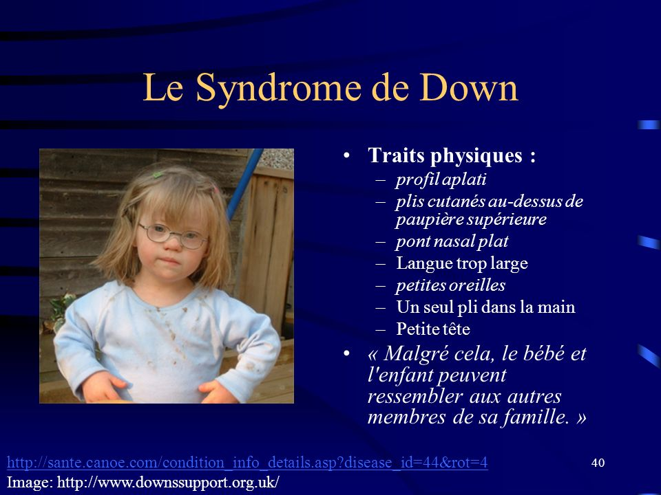 Le Syndrome de Down Traits physiques :