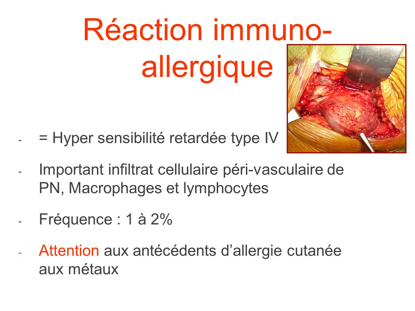 Réaction immuno-allergique