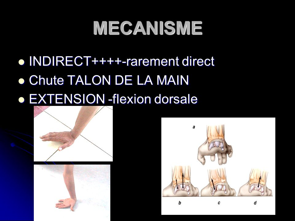 MECANISME INDIRECT++++-rarement direct Chute TALON DE LA MAIN