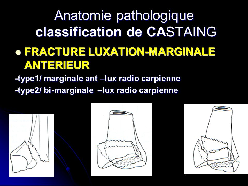 Anatomie pathologique classification de CASTAING
