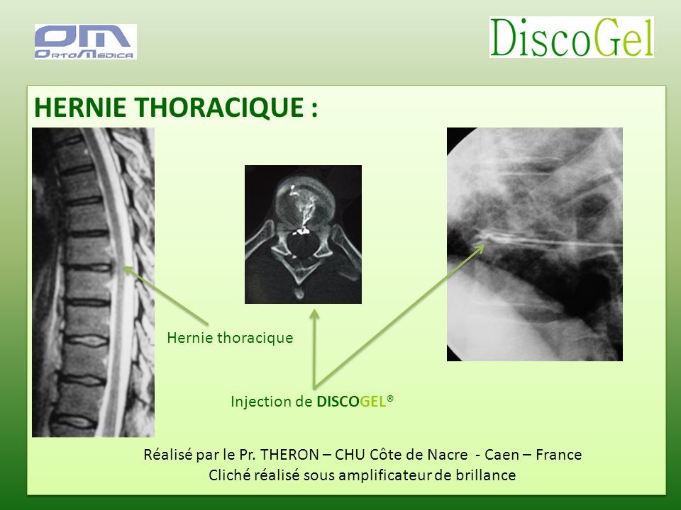 HERNIE THORACIQUE : Hernie thoracique Injection de DISCOGEL®