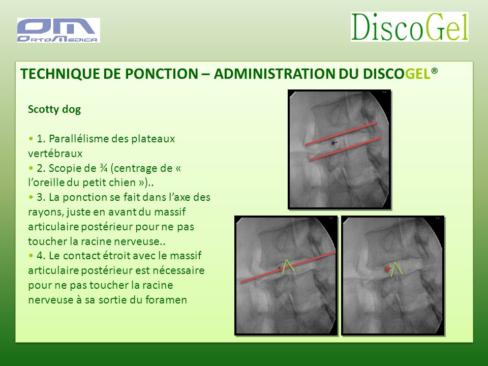 TECHNIQUE DE PONCTION – ADMINISTRATION DU DISCOGEL®