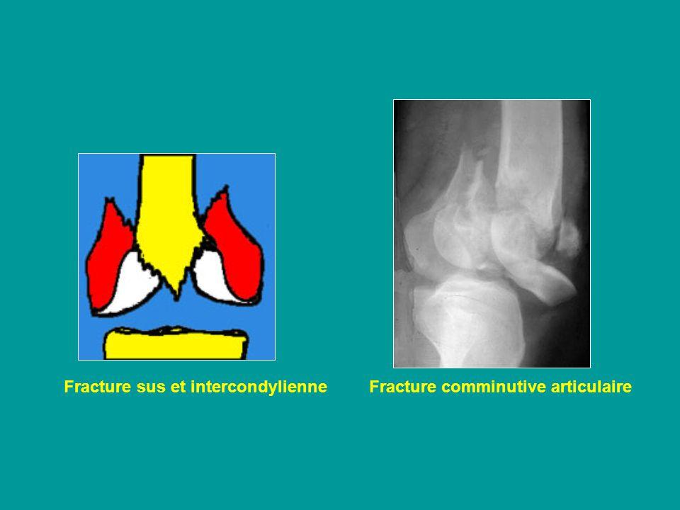 fracture sus et intercondylienne du fémur