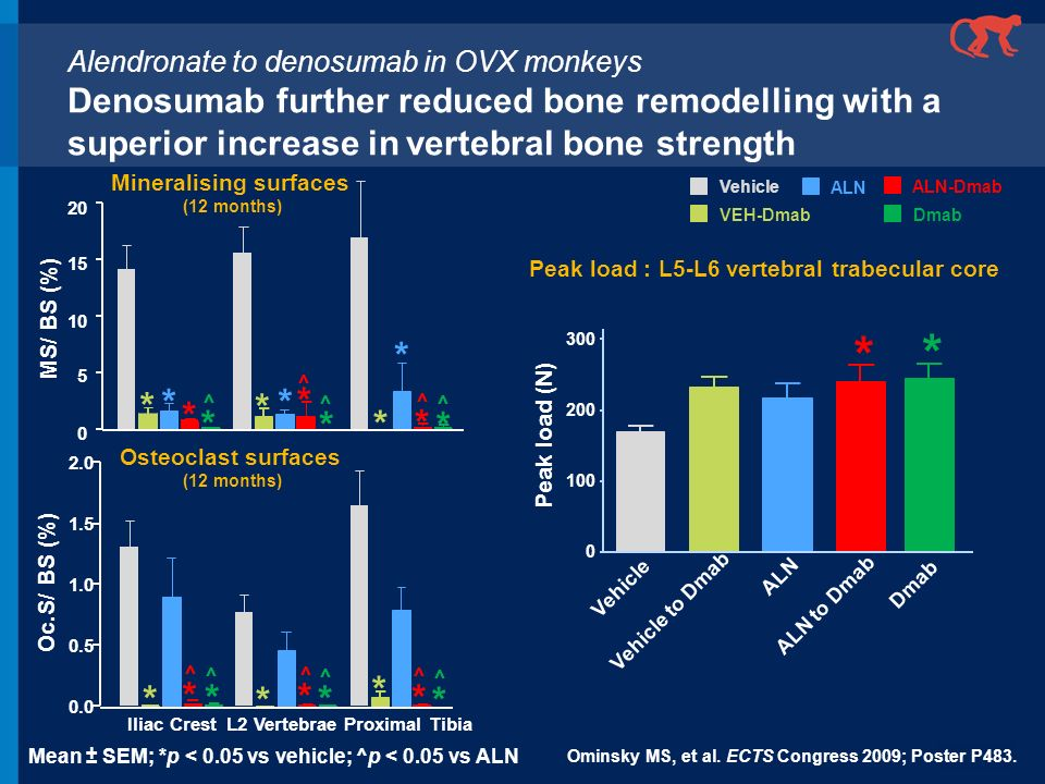 Mineralising surfaces Peak load : L5-L6 vertebral trabecular core