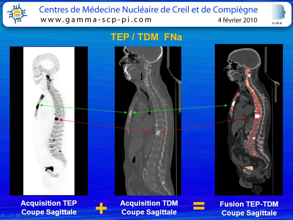 = + TEP / TDM FNa Acquisition TEP Coupe Sagittale Acquisition TDM