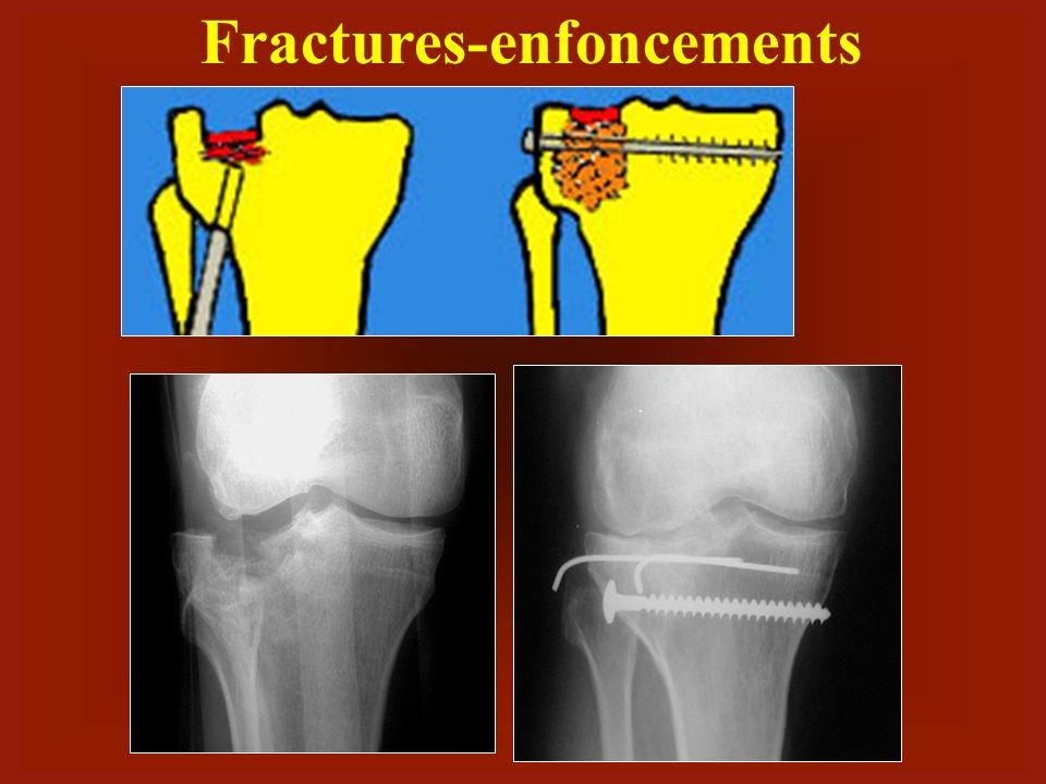 Fractures-enfoncements