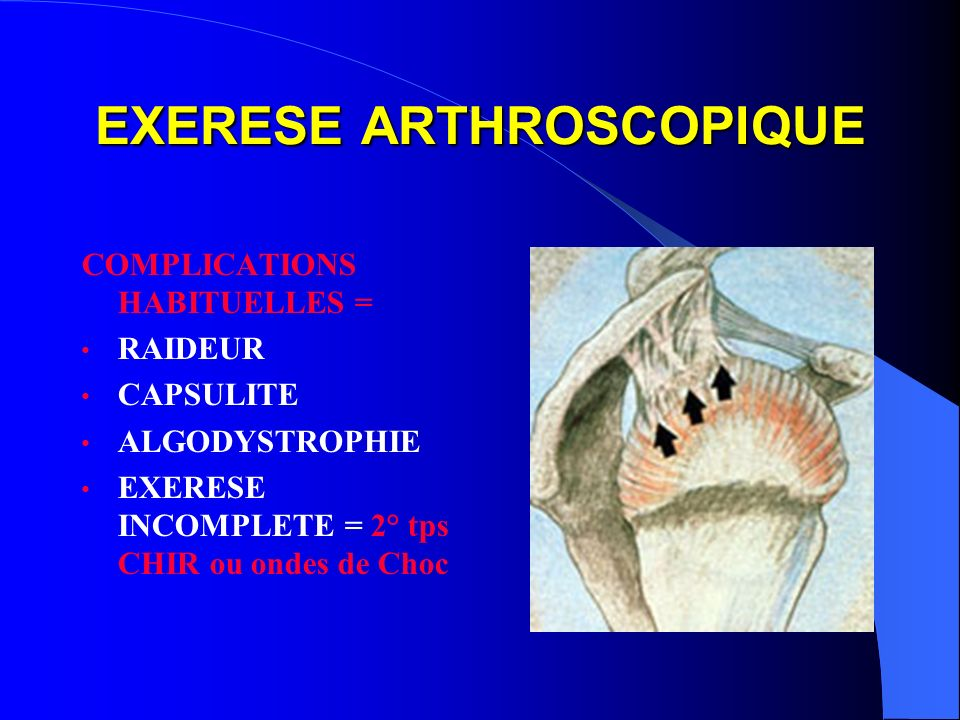 EXERESE ARTHROSCOPIQUE