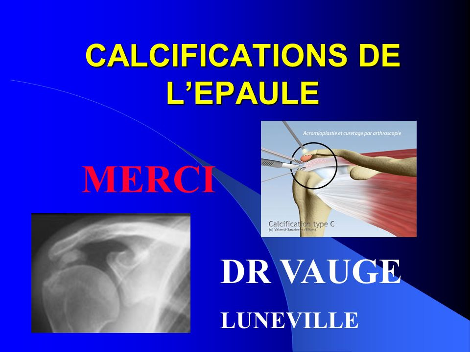 CALCIFICATIONS DE L'EPAULE