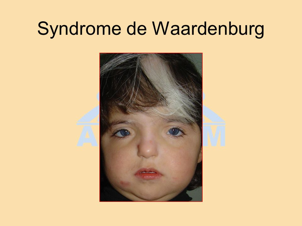 Syndrome de Waardenburg