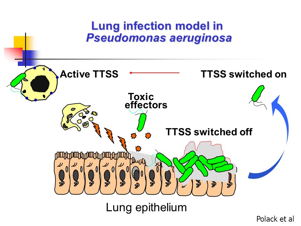 Lung infection model in Pseudomonas aeruginosa