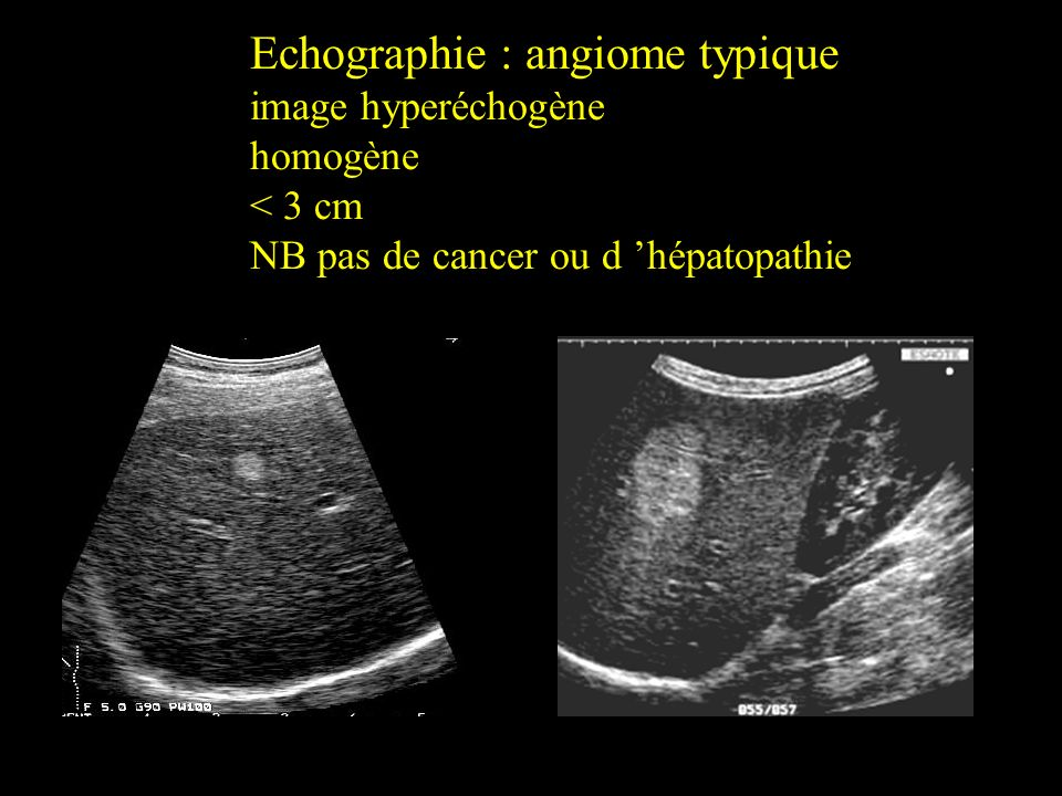 Echographie : angiome typique