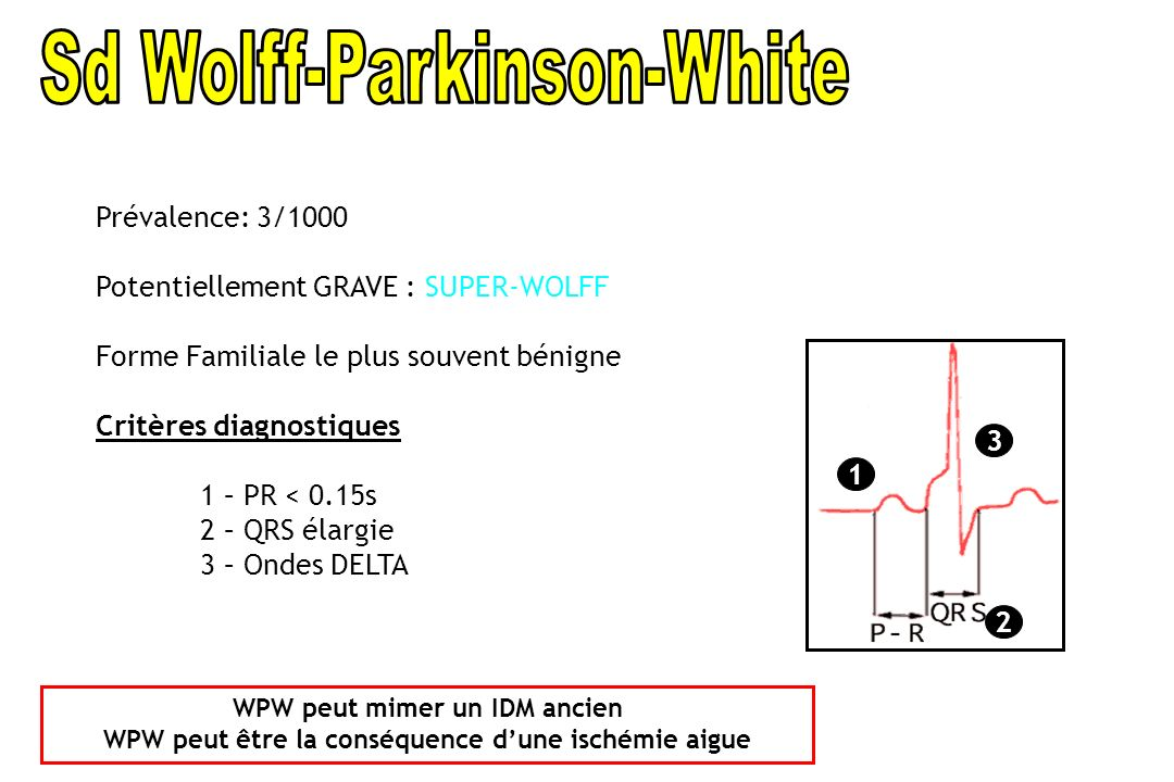 Sd Wolff-Parkinson-White