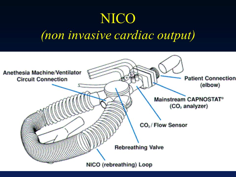 NICO (non invasive cardiac output)