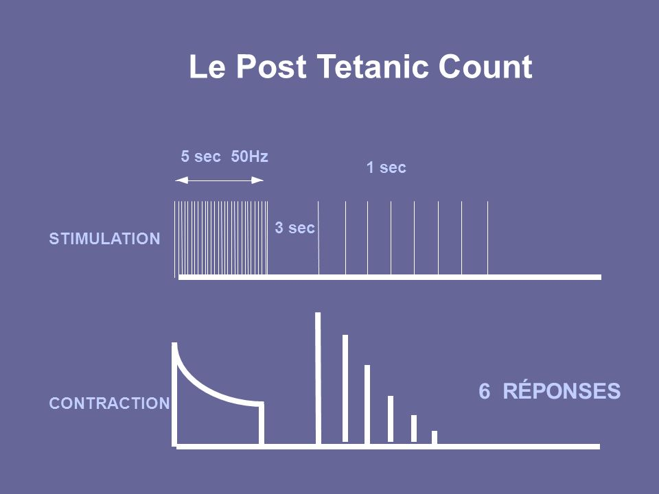 Le Post Tetanic Count 6 RÉPONSES 5 sec 50Hz 1 sec 3 sec STIMULATION