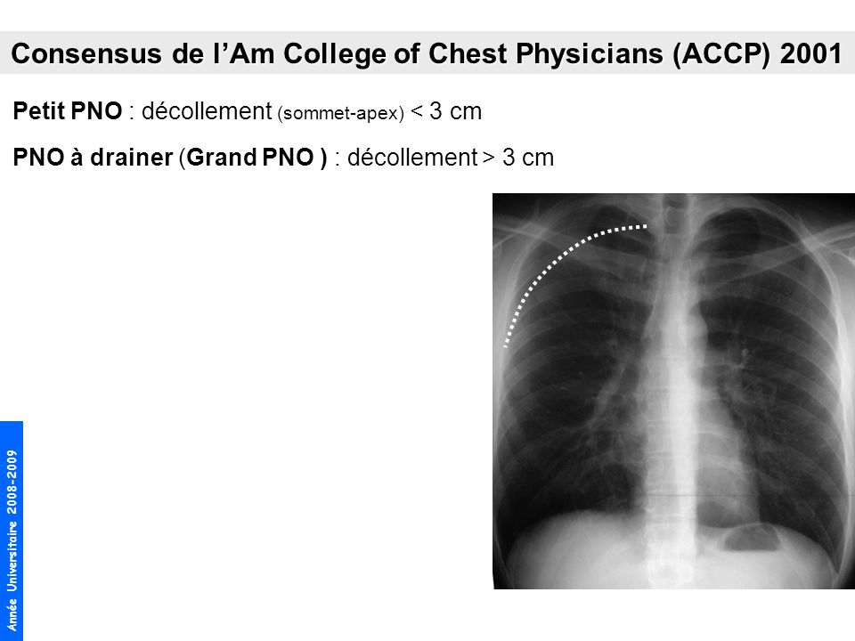 Consensus de l'Am College of Chest Physicians (ACCP) 2001