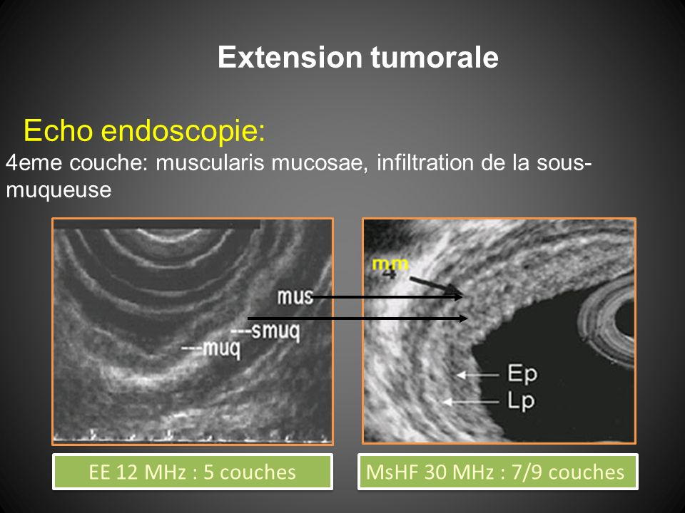 Extension tumorale Echo endoscopie: