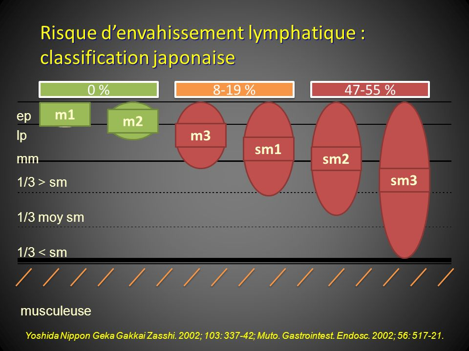 Risque d'envahissement lymphatique : classification japonaise