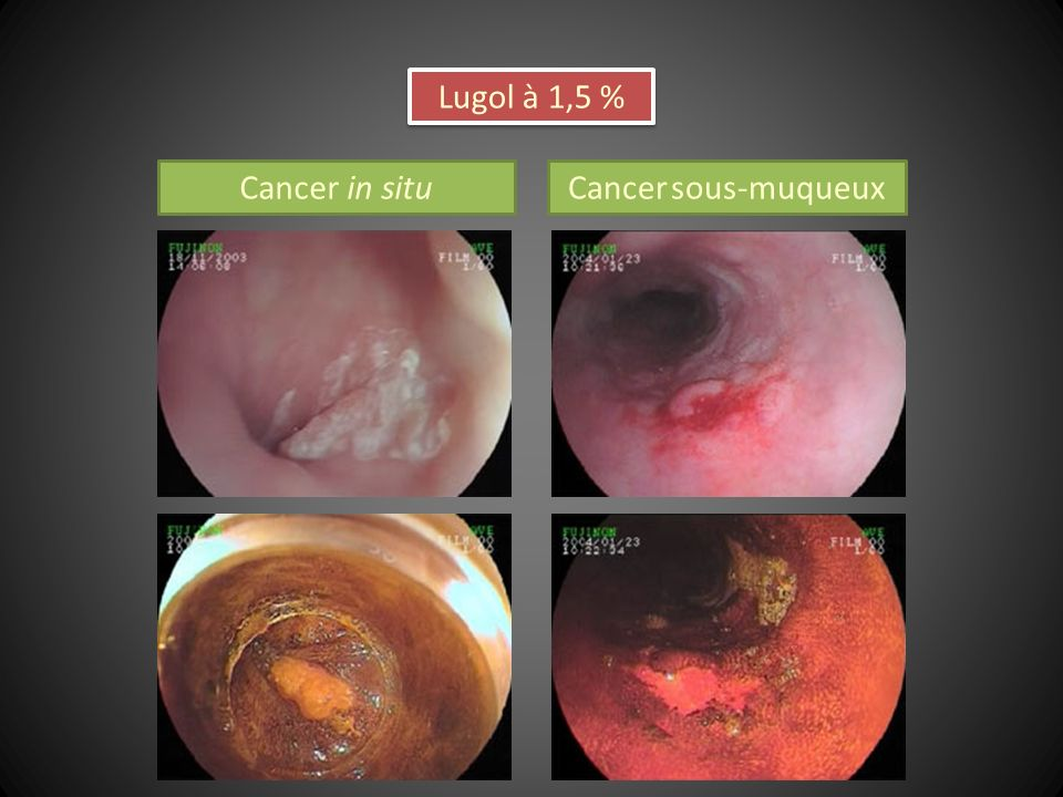 Lugol à 1,5 % Cancer in situ Cancer sous-muqueux