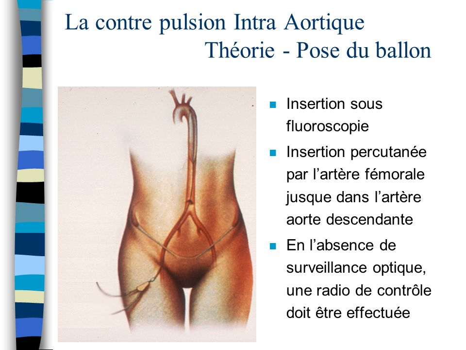 La contre pulsion Intra Aortique Théorie - Pose du ballon
