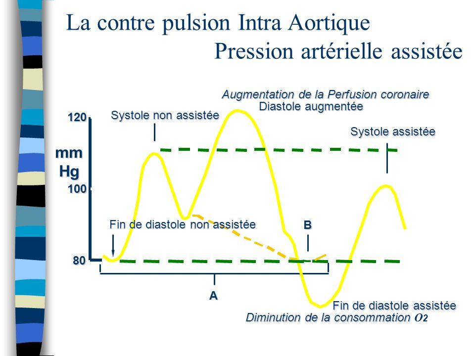 La contre pulsion Intra Aortique Pression artérielle assistée