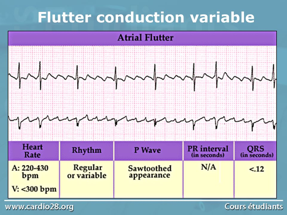 Flutter conduction variable