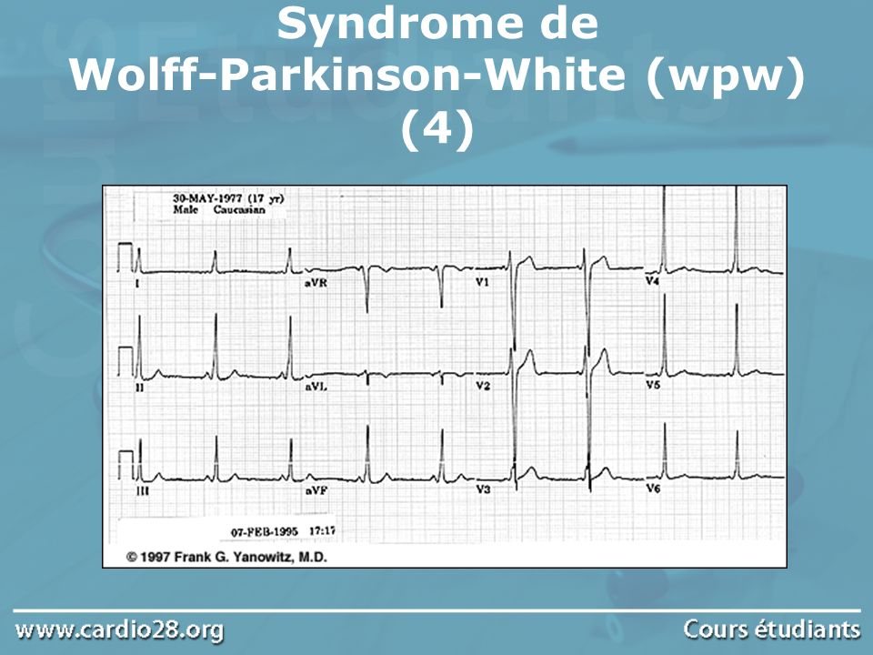 Syndrome de Wolff-Parkinson-White (wpw) (4)