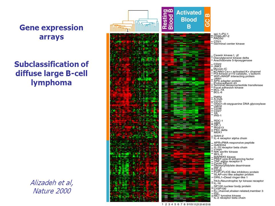 Gene expression arrays Subclassification of diffuse large B-cell